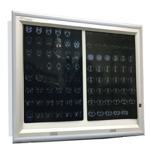 LED X RAY VIEWER