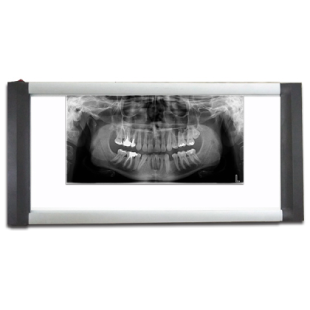 Dental Led x-ray viewer